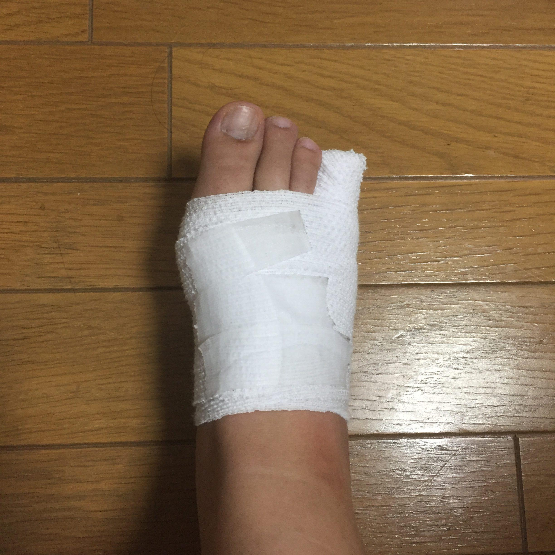 足指骨折記5-実はこれ、引き寄...